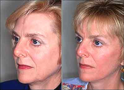 Face Lift Without Surgery-The new soft Thread procedure for a young