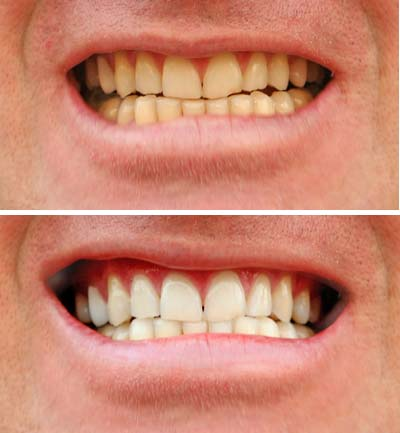 smell after wisdom removed having teeth