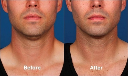 Kybella Procedure Review – The Solution to Double Chin