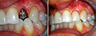 Dental Implants Does It Really Have To Take Almost A Year Before Getting Tooth
