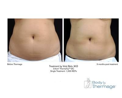 Body Shape Procedure by Thermage - Before and After