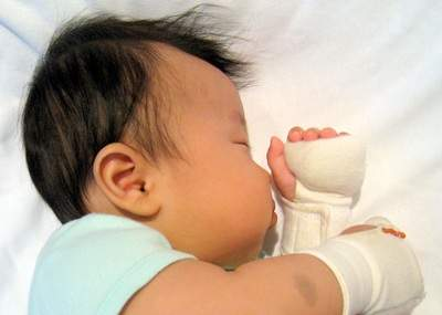 Squeez-ease prevents scratching and promotes sensory development